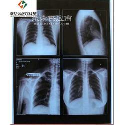 防水喷墨蓝片PM-B-210 1417医用干式胶片无银盐胶片防水胶片质量保证图片