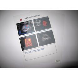 半透磨砂双面打印PET医用喷墨激光打印胶片B超四维彩超胃肠镜图片