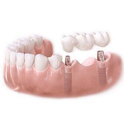 牙齿烤瓷修复-烤瓷修复-馨园口腔,提供好服务图片