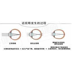 视力训练恢复|朝阳视力训练|宝宝视力训练图片