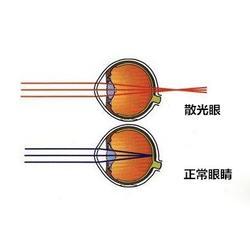 如何视力康复、揭阳视力康复、健瞳公司(图)图片