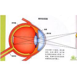 黄江镇近视眼矫正|健瞳公司|近视眼矫正器图片