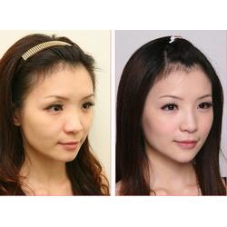 鑫赢国际(图)|隆鼻手术一般多少钱|焦作隆鼻图片