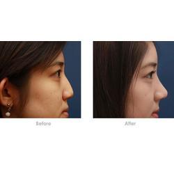鑫赢国际(图)、隆鼻手术一般多少钱、驻马店隆鼻图片
