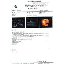 提供梅清多功能医用彩超胶片图片